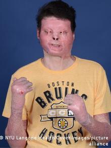 Joe DiMeo before his transplant surgeries