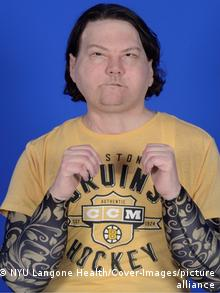Joe DiMeo after his face and double hand transplant surgeries