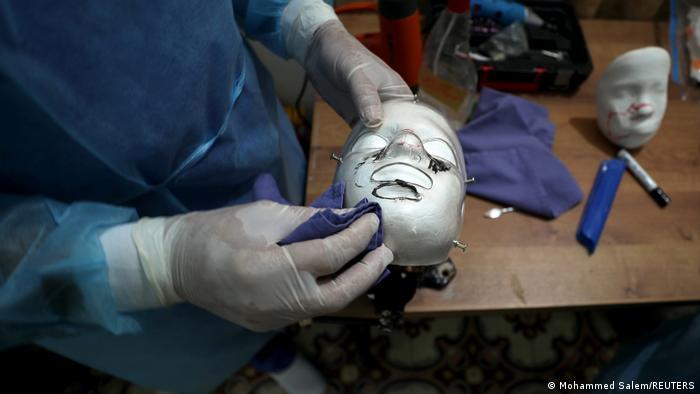 Palästina Brandopfer aus Gaza erhalten 3D-gedruckte Gesichtsmasken
