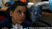Palestinian boy Ahmed Al-Deeb, who has severe facial burns, is fitted with a 3D transparent face mask, at Medecins Sans Frontieres (MSF)'s clinic in Gaza City February 8, 2021. Picture taken February 8, 2021. REUTERS/Mohammed Salem TPX IMAGES OF THE DAY