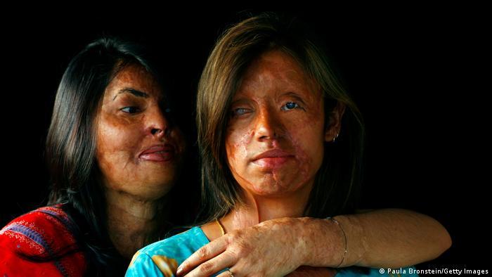 Pakistan Islamabad | Frau Opfer von Säureangriff nach Kinderehe