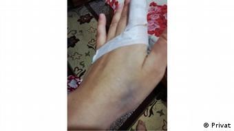 Kocası tarafından parmağı kırılan Esma, öldürülmekten korkuyor.