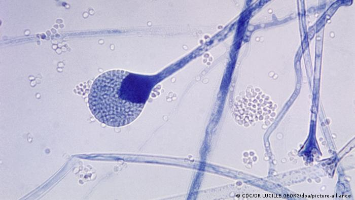 Mucormycosis under a microscope