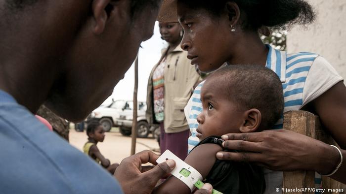 Pobreza y hambre en Madagascar.
