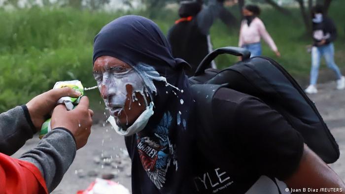 Foto de manifestante a quien le salpican la cara con leche para minimizar los efectos de los gases.