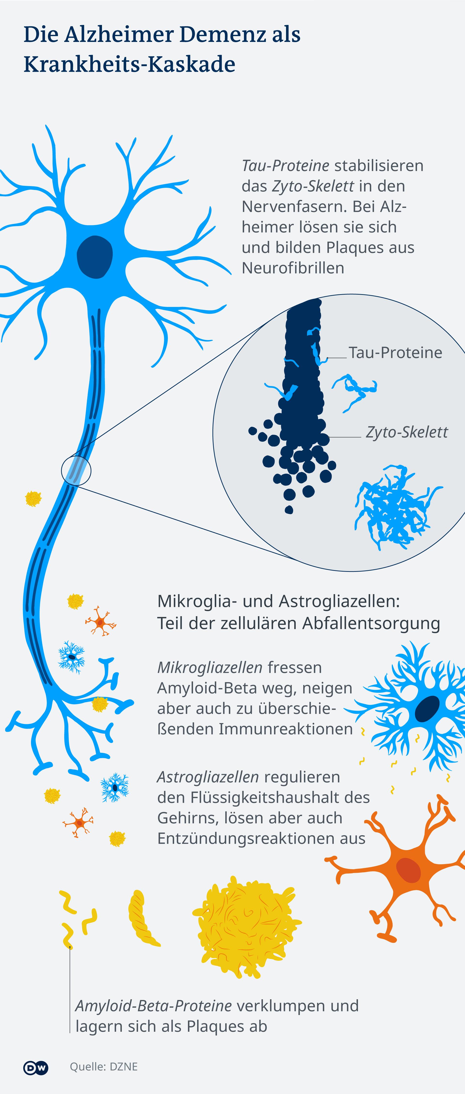 Infografik Die Alzheimer Demenz als Krankheits-Kaskade. Darin zu sehen sind Nervenzellen die von Tau und Amyloid-beta Proteinen, die sich ablagern, angegriffen und zerstört werden. Dazu sind Mikrogliazellen und Astrogliazellen abgebildet. Mikrogliazellen fressen Amyloid-beta weg, neigen aber auch zu überschießenden Immunreaktionen. Astrogliazellen regulieren den Flüssigkeitsgehalt des Gehirns lösen aber auch Entzündungsreaktionen aus.