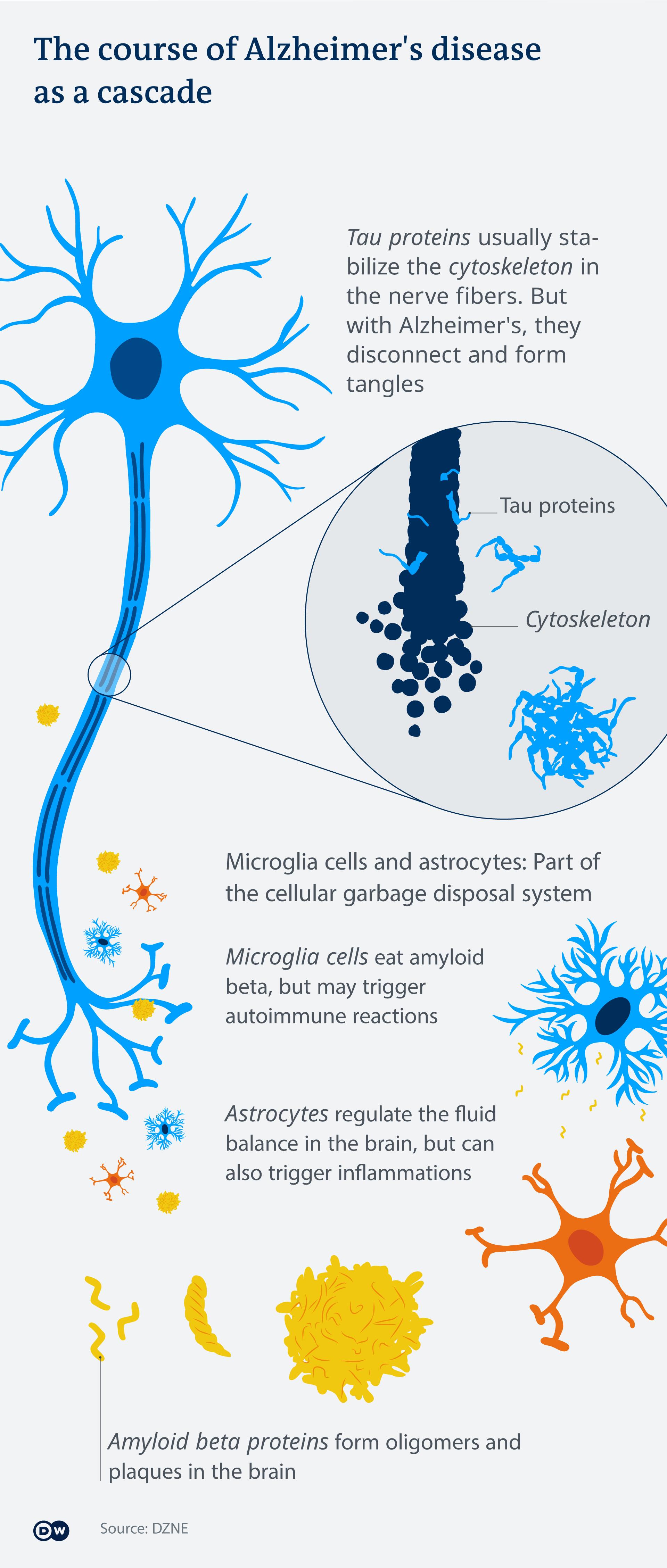 Infografik Alzheimer Kaskade EN