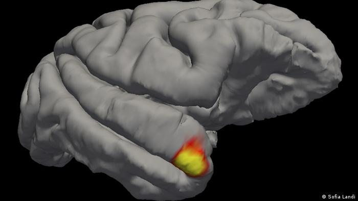 An image of the brain, with the temporal pole, highlighted in red and yellow