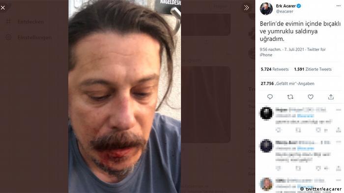 Erk Acarer saldırıdan sonra sosyal medyadan açıklamalar yaptı