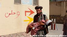 An Afghan civilian carry a wounded child to the hospital after he was injured during fighting between Taliban and government in Badghis province, northwest of Afghanistan, Wednesday, July,7 2021. From the early hours of Wednesday morning, battles have raged near the provincial police headquarters and a Qala-e-Naw army base, said Abdul Aziz beg, head of the provincial council in Badghis. (AP Photo/ Mirwis Omari)