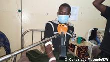 Celestino Castiel wurde von einem Polizisten geschlagen, weil er keine Maske gegen Covid-19 trug. Foto: Conceição Matende/DW, 19.07.2021, Lichinga, Mosambik