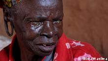 Elizabeth Bartoti, a patient who is suffering from Trachoma Where: Bisil, Kajiado, Kenya Photographer : By Shisia Wasilwa