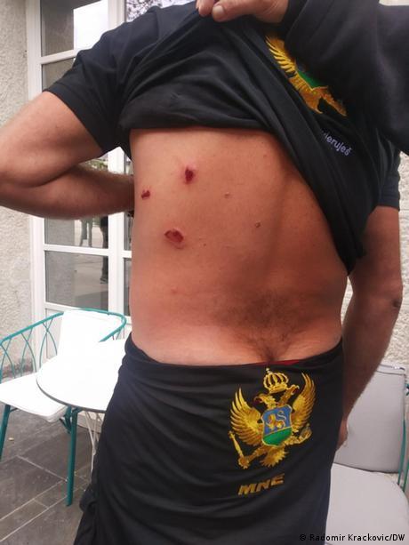Montenegro Krise l Verletzungen eines Bürgers während der Proteste in Cetinje