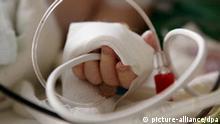 ARCHIV - An der Hand eines Babys, das auf der Kinder-Intensivstation der Mainzer Universitätsklinik liegt, sind Schläuche für die medizinische Versorgung angebracht (Archivfoto vom 25.11.2005). Zwei Säuglinge sind am Samstag (21.08.2010) im Zentrum für Kinder- und Jugendmedizin der Universitätsmedizin Mainz gestorben. Der Tod stehe möglicherweise im Zusammenhang mit der Gabe einer durch Bakterien verunreinigten Infusionslösung, wie die Klinik am Sonntag mitteilte. Neun weitere Kinder seien mit Lösungen der gleichen Charge versorgt worden, von denen sich fünf am Sonntag noch in einem kritischen Zustand befanden. Die Verkeimung sei bei einer Qualitätsüberwachung festgestellt worden, die täglich durchgeführt werde. Es handelt sich um Ernährungslösungen, die aus verschiedenen Komponenten externer Hersteller in der Apotheke der Klinik hergestellt werden, teilte die Klinik weiter mit. Foto: Frank May +++(c) dpa - Bildfunk+++