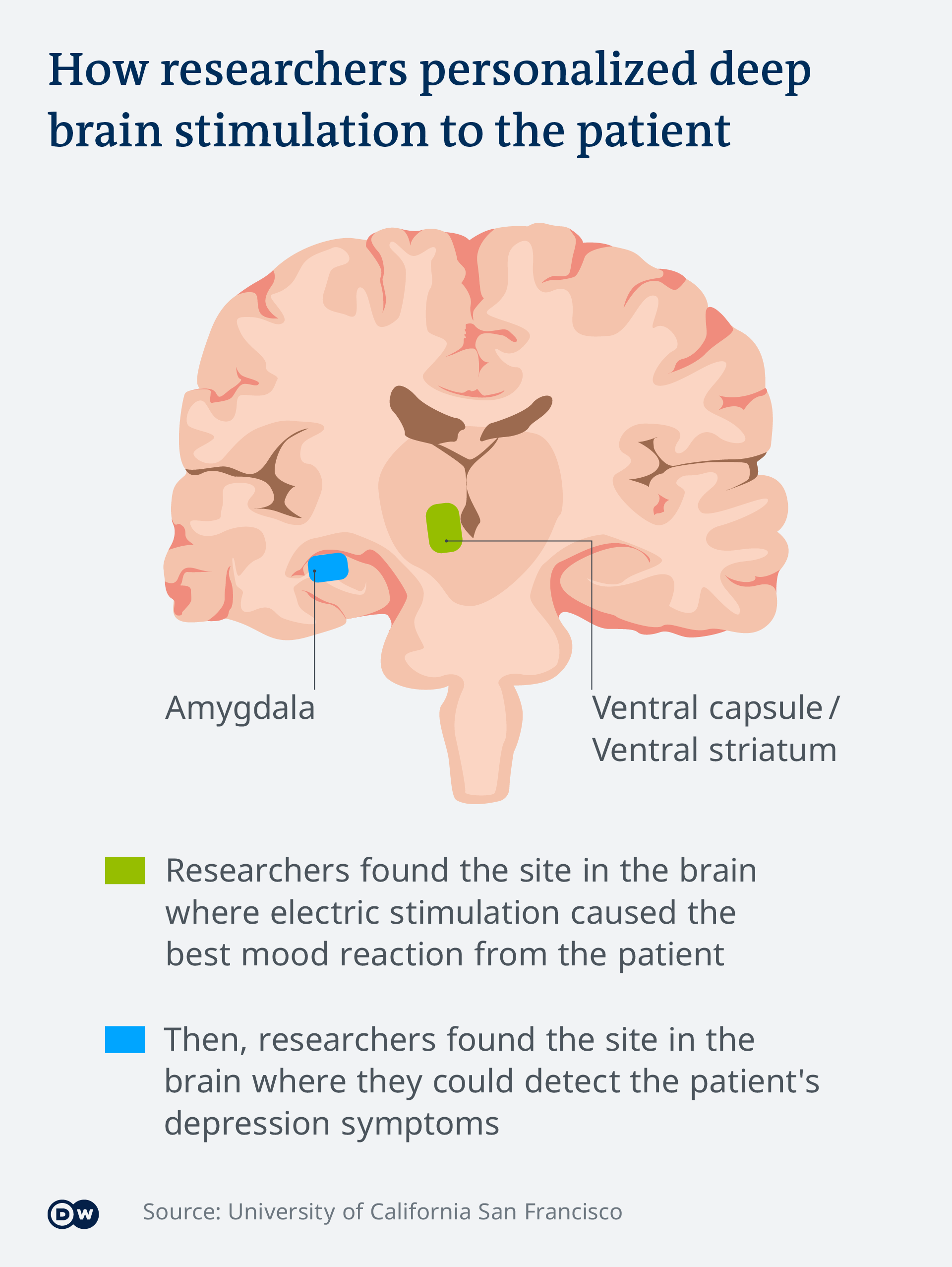 An info-graphic explaining that researchers first found the site in the brain where electric stimulation caused the best mood reaction from the patient (the ventral capsule) and then pinpointed the site in the brain where they could detect the patient's depression symptoms (the amygdala)