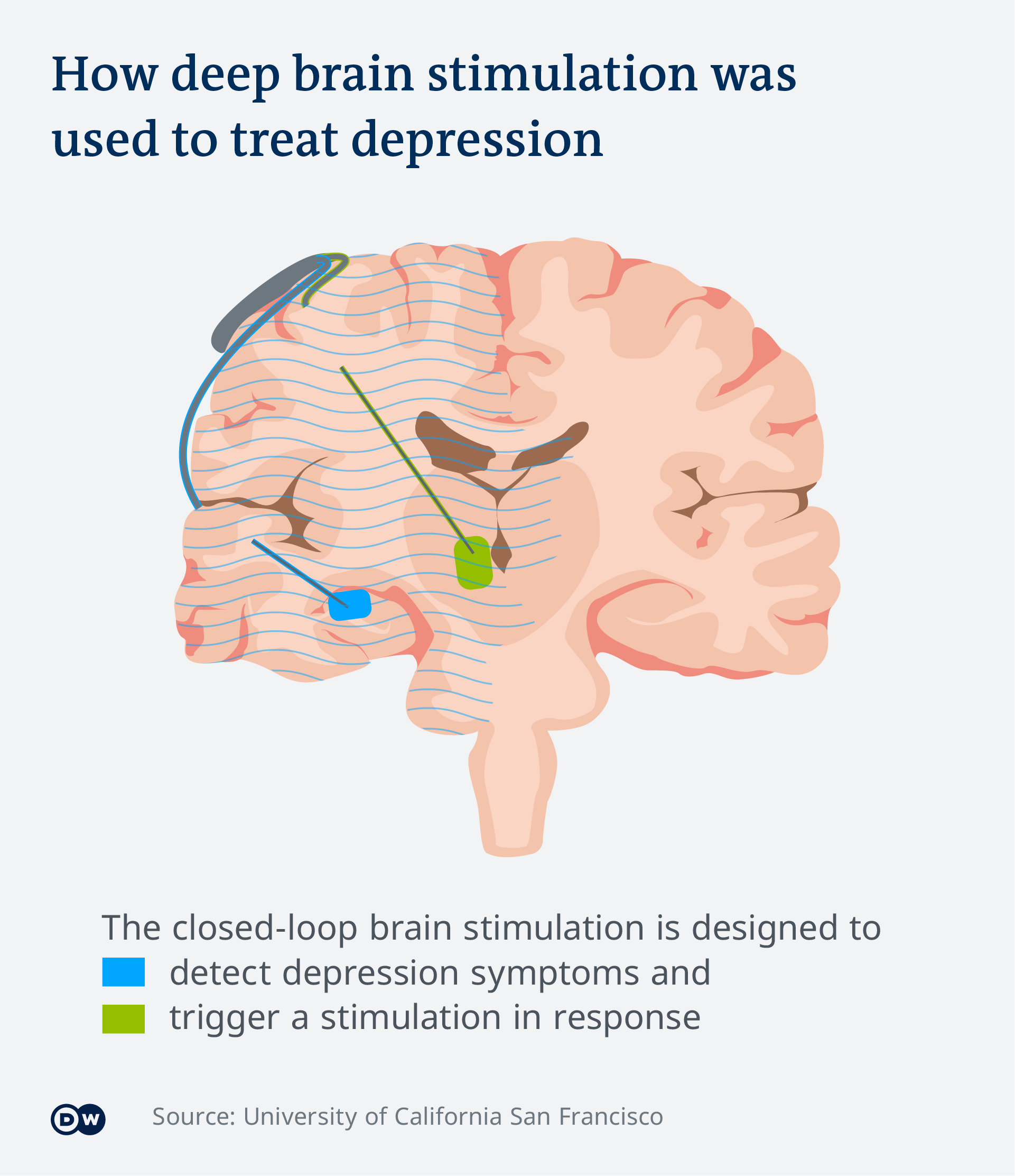 An info-graphic showing the device's location in the patient's brain: one electrode is detecting depression symptoms and the other is triggering a stimulation in response
