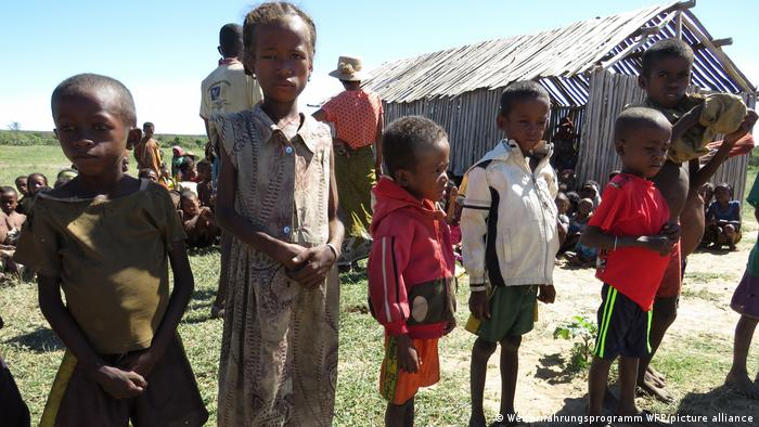 Madagaskar | Mangelernährte Kinder