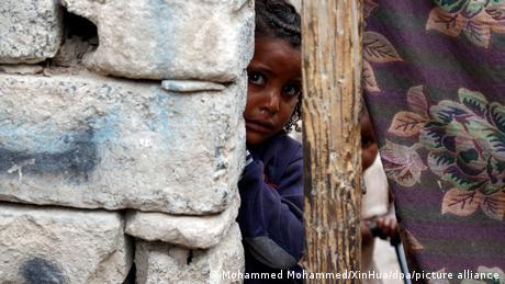 Welthunger-Index | Hungersnot im Jemen