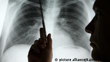 ARCHIV - Die Diagnose Lungenkrebs musste Nicolas Dickgreber dem 1968 geborenen Patienten mit diesem Röntgenbild geben, auf das er in der Medizinischen Hochschule Hannover (MHH) zeigt (Foto vom 15.11.2006). In Deutschland wird nach einer Schätzung des Robert-Koch-Instituts (RKI) im Jahr 2010 fast jede Minute eine neue Krebsdiagnose gestellt, wird am Dienstag (23.02.2010) in Berlin mitgeteilt. Foto: Rainer Jensen dpa/lbn (zu lbn 4077 vom 23.02.2010) +++(c) dpa - Bildfunk+++