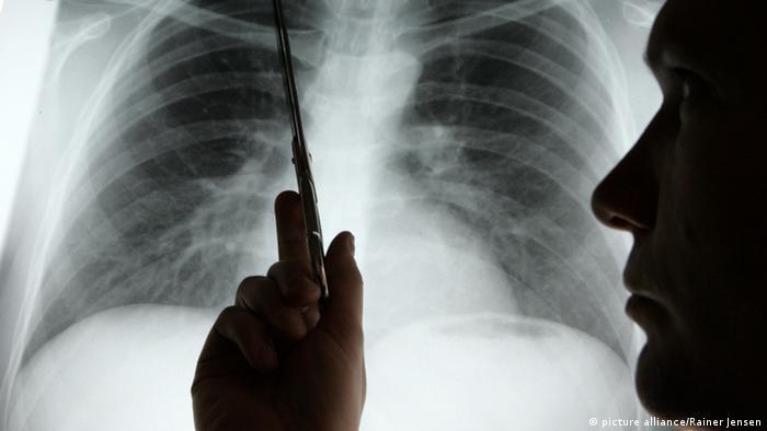 Symbolbild Lungenkrebs
