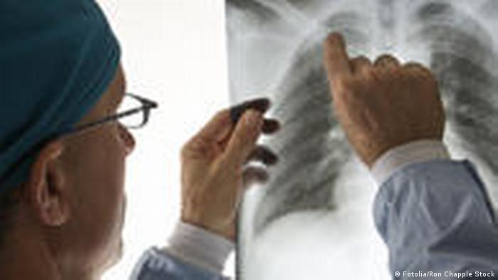 Arzt Röntgenbild (Fotolia/Ron Chapple Stock)