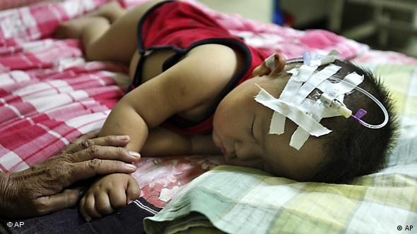 A child suffering from problems related to consuming milk tainted with industrial chemical melamine, which caused the death of at least six infants in China in 2008