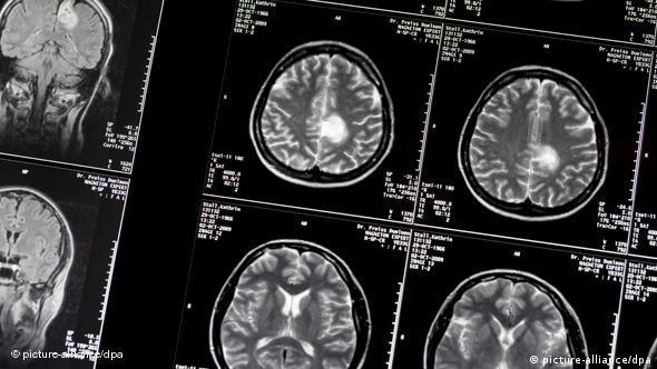 Flash-Galerie Alzheimer Diagnostik