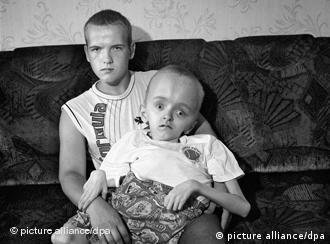 Білоруські брати-блюзнюки Михайло і Володимир Ларига обидва мають хвороби, пов'язані з наслідками аварії на ЧАЕС
