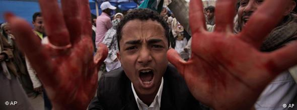 An anti-government protestor shouts with blood on his hands during clashes in Sanaa, Yemen