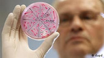 A doctor in a laboratory holds a tube containing the EHEC bacteria