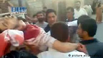 A TV image of an injured man at a protest in Homs