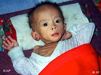 Die Folgen der Unterernährung treffen die Kleinsten besonders hart (Foto: ap)