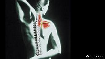Causas del dolor de espalda media y bajanda