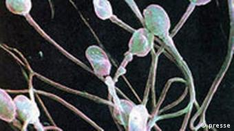 Menschliches Sperma vergrößert Spermium Sperm Samen