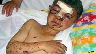 Kind Kriegsopfer in Irak