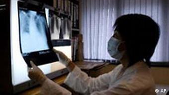 SARS Röntgenbild mit Thumbnail