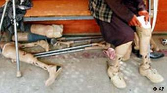 A man tries on an artifical leg at a center in Kabul
